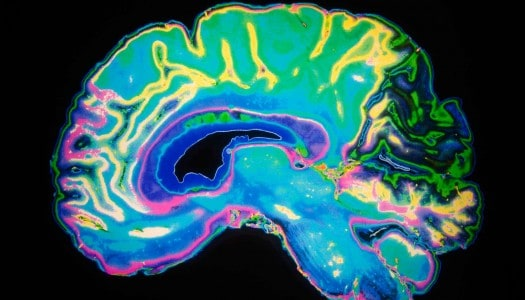 Afraid of Alzheimer's Disease? Here's Something You Can Do About It!