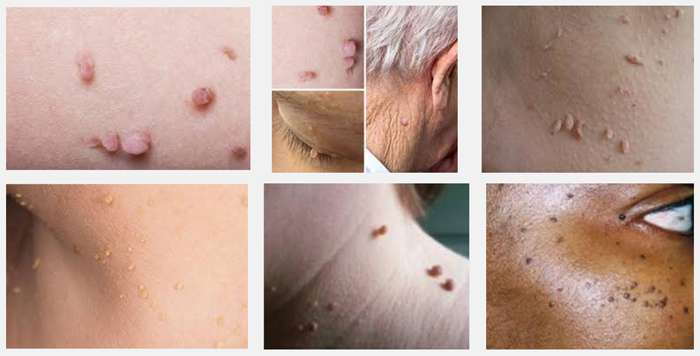 3 Tips For Managing Skin Tags As You Get A Little Older Sixty And Me