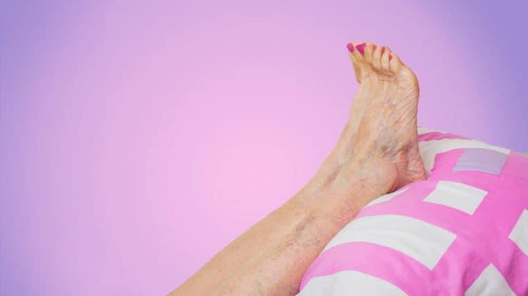Senior-Woman-Swollen-Ankles