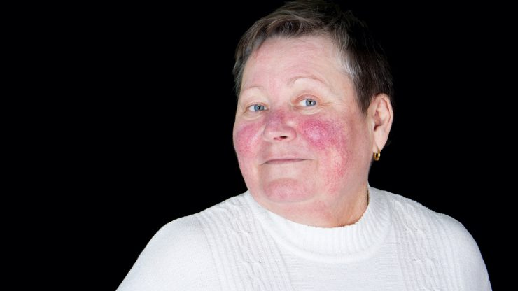 Makeup-Tips-for-Older-Women-How-to-Conceal-Age-Spots-and-Rosacea
