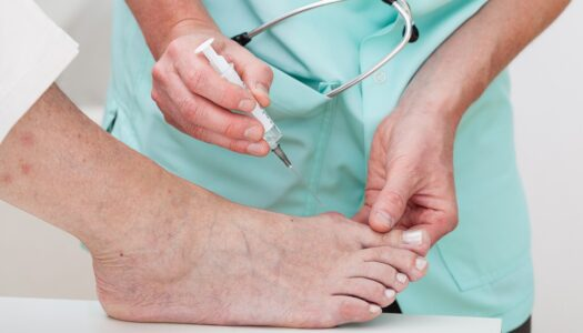 How to Prepare for Bunion Surgery
