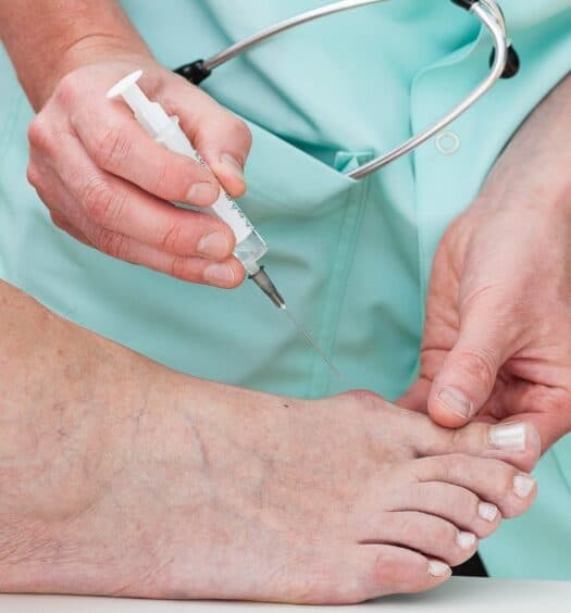 preparing for bunion surgery